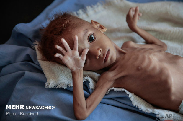 گرسنگی و سوء تغذیه در یمن
