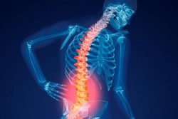 Comprehensive plan devised to curb osteoporosis