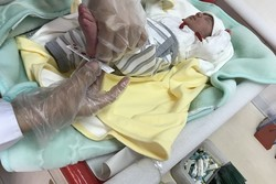 مرگ مادر باردار آملی در کارگروه ویژه بررسی می شود