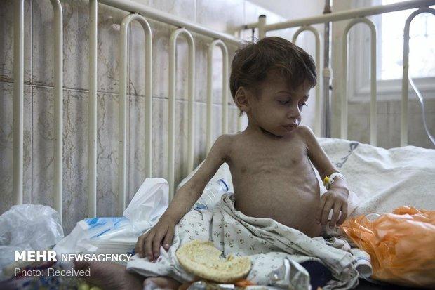 سوء تغذیه کودکان غزه