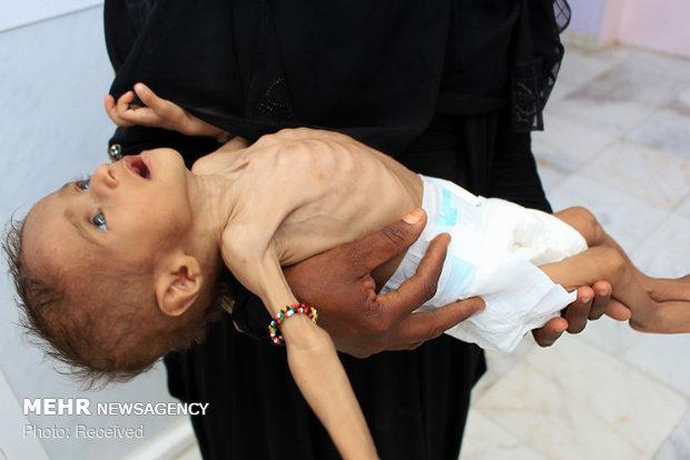 سلامت میلیون ها کودک یمنی در خطر است/ طرح شکایت از ائتلاف سعودی