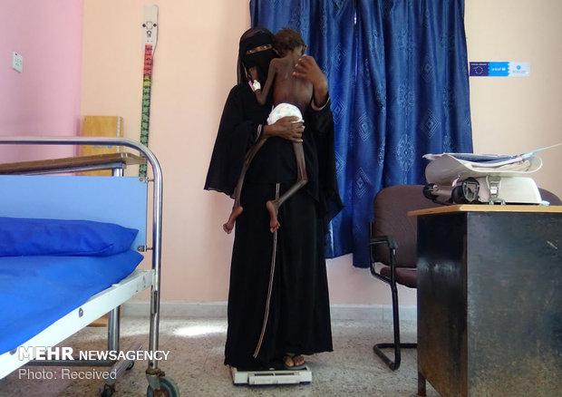 انتقاد وزارت بهداشت یمن از بی تفاوتی سازمان ملل در قبال متجاوزان
