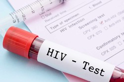 HIV/AIDS tests prior to football match scheduled