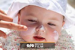 دلایل و بهترین روشهای درمان اگزما در کودکان