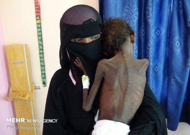 'Spectra of famine has returned to Yemen': warns UN