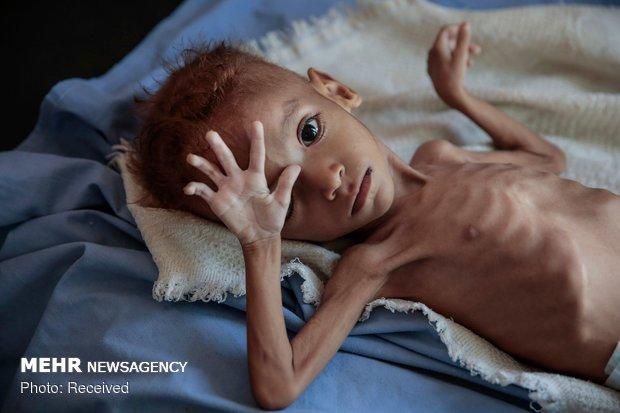 سازمانملل: یمن در آستانه فاجعه عظیمی قرار دارد