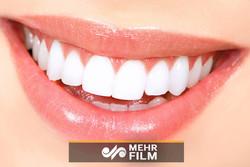 چگونه دندانهای سفیدتری داشته باشیم؟