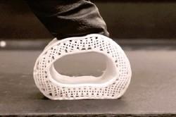 ترمیم استخوان های تخریب شده با چاپگر سه بعدی