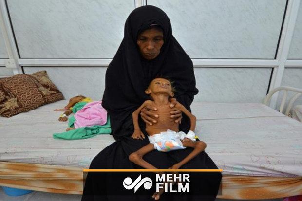 لحظه جان سپردن کودک یمنی در آغوش والدینش