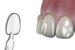 Dişçilik alemi yeni bir icadı kullanmaya hazırlanıyor