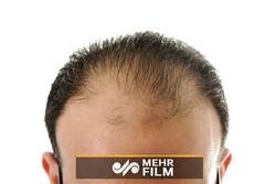 دلایل ریزش مو همزمان با افزایش سن