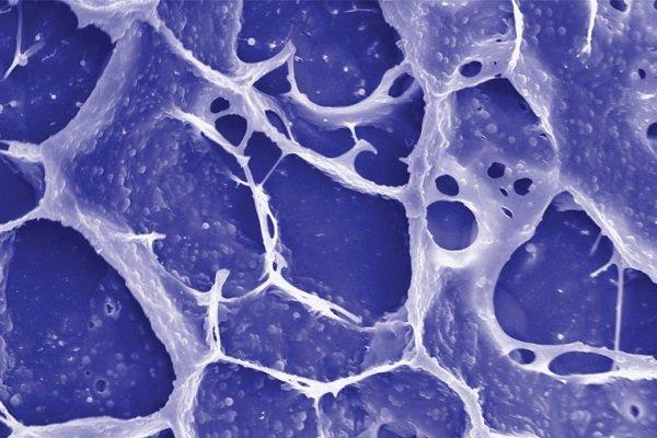 درمان سرطان روده با یک نوع شیمی درمانی جدید از سوی محققان کشور