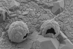 شناسایی و نابودسازی سلولهای سرطانی با «اسب تروجان»
