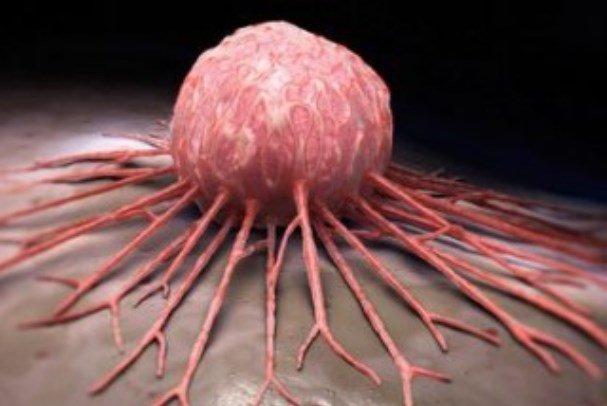 ساخت نانوزیست حسگری برای تشخیص سرطان