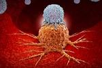 درمان سرطان, سرطان