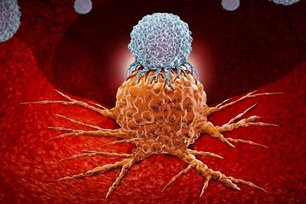تاثیر آنتی اکسیدان ها بر تسریع در پیشرفت سرطان ریه