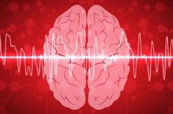 سیستم جدید هوش مصنوعی علائم مغزی را به سخنرانی مبدل می کند