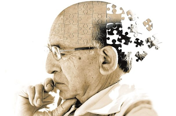 ذخیره آهن در مغز علت اصلی بیماری آلزایمر