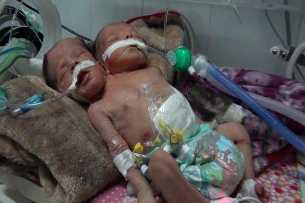 الأمم المتحدة: يقتل أو يصاب 8 أطفال في اليمن يوميا