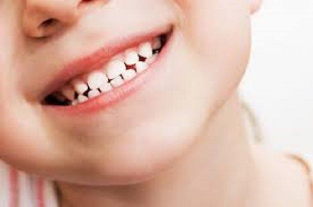 اولین دیدار کودک با دندانپزشک قبل از یک سالگی است,