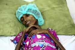 اکثریت زنان باردار در یمن از سوء تغذیه شدید رنج می برند