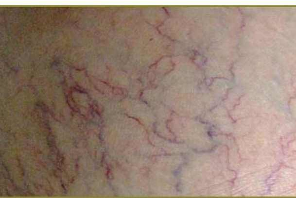 درمان رگ های عنکبوتی با نمک!