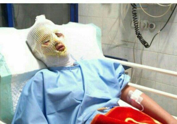 جزئیات مرگ نوجوان ۱۵ ساله اندیمشکی در حوادث چهارشنبه سوری