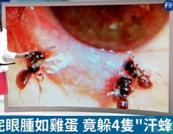 ۴ زنبور زیر پلک یک زن زندگی می کردند!