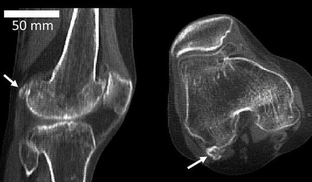 استخوان منسوخ شده دوباره در بدن انسان ظاهر شد!