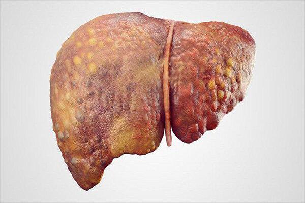 نرخ جهانی ابتلا به سرطان کبد روند صعودی دارد