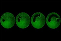 میکروربات دندانها را تمیز میکند