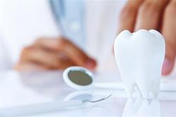 بهترین روش لمینیت دندان