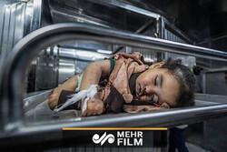 فلسطین کی 14 مہینے کی بچی اسرائیلی بربریت کا نشانہ بن گئی