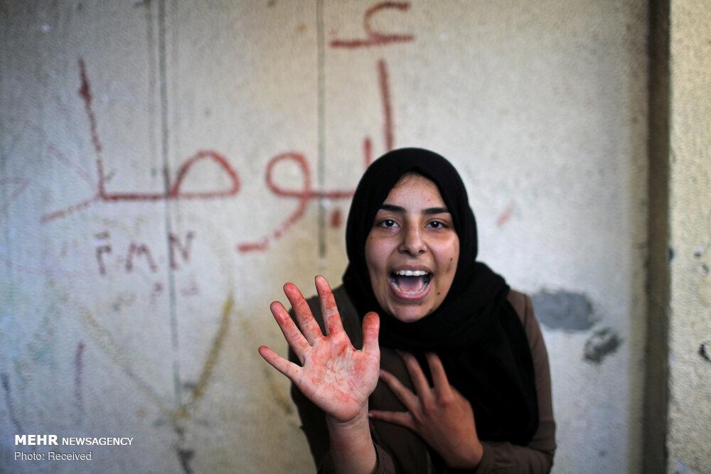 افزایش شهدای فلسطینی در حمله رژیم کودک کش صهیونیستی
