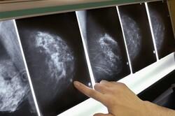 تصویر جغرافیای سرطان در ایران/ نخستین رتبه بندی ۳۰ استان منتشر شد