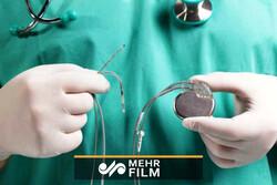 ماجرای کمبود باتریهای قلب چیست؟