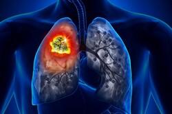 تشخیص سریع سرطان ریه با هوش مصنوعی
