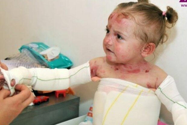 US economic terrorism seriously hurting EB patients in Iran