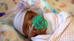 احیای دوباره نوزاد ۱۲ روزه فاقد علائم حیاتی در خرمشهر