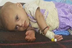 Yemen'de her 11 dakikada bir çocuk ölüyor