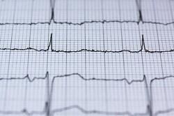 دستگاه نوار قلب ۱۲ کاناله تولید شد