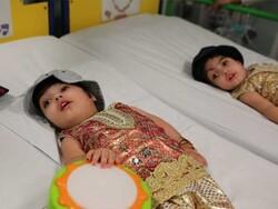 برطانیہ کے اسپتال میں کامیاب آپریشن کے بعد پاکستان کی سر جڑی جڑواں بچیوں کو علیحدہ کردیا گیا