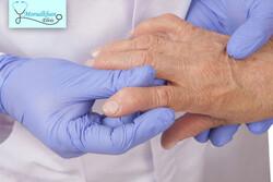 شایعترین بیماریهای روماتولوژی