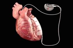 درمان بیماری های قلبی با برق