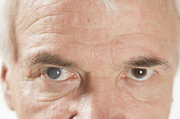 عوامل ابتلا به آب مروارید/درمان بموقع از نابینایی پیشگیری میکند