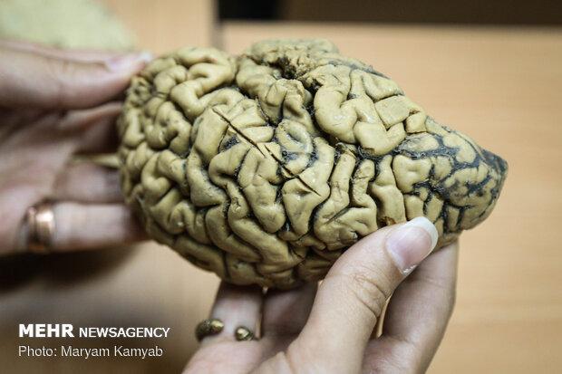Brain Bank of Iran