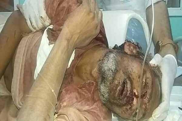 ۱۳ شهید و ۲۳ زخمی در یورش وحشیانه ائتلاف سعودی به بازاری در صعده