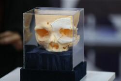 رونمایی از استخوان مصنوعی ساخته شده با پرینتر ۳ بعدی