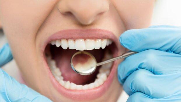 چینی ها مینای دندان را احیا کردند/ پرکردن دندان منسوخ شد