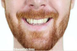 تاثیر مصرف قهوه بر کامپوزیت دندان